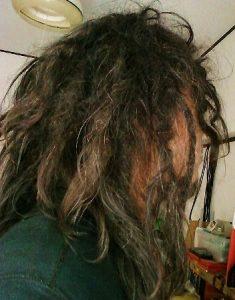 フリーフォームドレッド 25ヶ月 asian freeform dreadlocks 25month